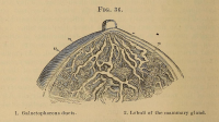 "Mamelle de femme (sein) : 1. Canaux galactophores. 2. Lobules glandulaires. (fichier Commons : "" A_treatise_on_the_science_and_practice_of_midwifery_(1878)_(14802978273)"") (domaine public) Playfair, W. S. (William Smoult), 1836-1903 Harris, Robert P. ed. Obstetrics, 1878"
