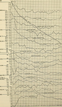 "Jeûne humain de 31 jours : ses effets physiologiques (poids, respiration, circulation, analyses sanguines). In Columbia University Libraries (fich. Wiki. Commons : ""Physiology_and_biochemistry...(1918)_(14801408103)"") (domaine public) Macleod J J R (1876-1935), Pearce R G, Physiology and biochemistry in modern medicine, 1918"