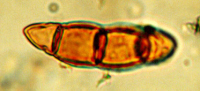 "Ascospore fossile. (fichier Commons : ""Ascospore_fossil"") (domaine public) Eisner Wendy, U.S. National Oceanic and Atmospheric Administration, 2010"