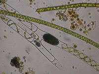 "Spirogyre avec oeuf. (fichier Commons : ""800px-Spirogira_zygote"") - licence CC-BY-SA 3.0 (https://creativecommons.org/licenses/by-sa/3.0/) Keisotyo, Japon, 2006"