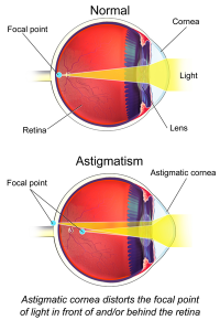 "Astigmatisme. (fichier Commons : ""Astigmatism_(Eye)"") - licence CC-BY-SA 4.0 (https://creativecommons.org/licenses/by-sa/4.0/) Blaus Bruce, 2015"