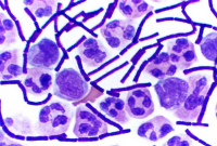 "Bacilles du charbon bactéridien (<em>Bacillus anthracis</em>), et globules blancs, dans du fluide cérébro-spinal, coloration de Wright. (fichier Wikimedia Commons : ""Gram_Stain_Anthrax"") (domaine public) US CDC, 2005"