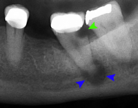 "Carie dentaire profonde (flèche verte) et abcès périapical chronique (flèches bleues). (fichier Commons : ""Tooth_decay_and_abscess_xray"") - licence CC-BY-SA 3.0 (https://creativecommons.org/licenses/by-sa/3.0/) Coronation Dental Specialty Group, 2014"