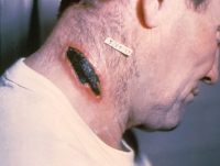 "Charbon bactéridien, lésion cutanée sur le cou (homme). (fichier Commons : ""Cutaneous_anthrax_lesion_on_the_neck._PHIL_1934_lores"") (domaine public) US Centers for Disease Control and Prevention (CDC), 1953"