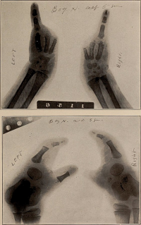 "Ectrodactylie = adactylie humaine, radiographie. In ""Buffalo medical journal"" (fichier Wikimedia Commons : ""Buffalo_medical_journal_(1914)_(14761537924)"") (domaine public) Philadelphia Historical Medical Library, 1915"