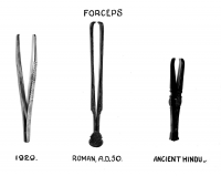 "Forceps : pinces de type forceps (actuelle, anciennes romaine et indienne). (fichier Wikimedia Commons : ""Tweezer-type_forceps_Wellcome_M0001234"") - licence CC-BY-SA 4.0 (https://creativecommons.org/licenses/by-sa/4.0/) Wellcome Collection gallery, 2014"
