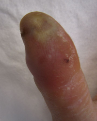 "Infection de la pulpe du pouce humain. (fichier Wikimedia Commons : ""Infection_of_the_pulp_space_of_the_thumb"") - licence CC-BY-SA 3.0 (https://creativecommons.org/licenses/by-sa/3.0//deed.fr) Heilman James, MD, 2012"