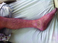 "Livedo reticularis de la jambe humaine par sténose aorto-iliaque. In Journal of Investigative Medicine High Impact Case Reports. (fichier Wikimedia : ""Livedo_reticularis_of_left_leg"") - (https://creativecommons.org/licenses/by-sa/3.0//deed.fr) Nantsupawat T. et al, 2013 - licence CC-BY-SA 3.0"
