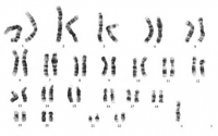 "Monosomie 45 : caryotype dans le syndrome de Turner de la femme. (fichier Wikimedia Commons : ""45,X"") - licence CC-BY-SA 3.0 (https://creativecommons.org/licenses/by-sa/3.0//deed.fr) Cat~commonswiki, 2006"