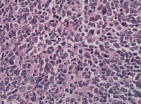 "Neuroblastome : neuroblastes commençant la maturation. (fichier Wikimedia Commons : ""Neuroblastoma_cell_matruration"") - licence CC-BY-SA 3.0 (https://creativecommons.org/licenses/by-sa/3.0//deed.fr) Jens Florian, 2011"