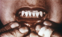 "Scorbut : lésions des gencives. (fichier Wikimedia Commons : ""Scorbutic_gums"") (domaine public) Centers for Disease Control and Prevention (CDC), 1970"