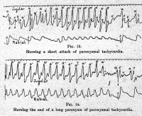 "Tachycardie paroxystique : attaque (en haut) et fin (en bas). (fichier Wikimedia Commons : ""Ink_polygraph,_Sir_J._Mackenzie_Wellcome_L0004448"") - licence CC-BY-SA 4.0 (https://creativecommons.org/licenses/by-sa/4.0/) Mackenzie J. (sir), Wellcome Images, avant 2014"
