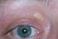 "Xanthelasma au dessus de l'oeil droit. (fichier Wikimedia Commons : ""Xanthelasma_palpebrarum"") - licence CC-BY-SA 3.0 (https://creativecommons.org/licenses/by-sa/3.0//deed.fr) Bobtheowl2, English Wikipedia, 2007"