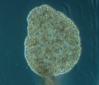 "Placozoaire, <em>Trichoplax adhaerens</em>. (fichier Commons : ""701px-Trichoplax_adhaerens_photograph"") - licence CC-BY-SA 4.0 (https://creativecommons.org/licenses/by-sa/4.0/) Schierwater Bernd, Global Diversity of the Placozoa, 2013"