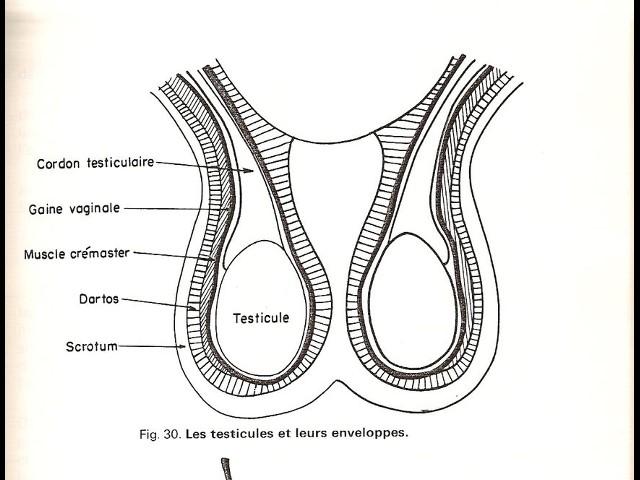 La thrombose de la gauche veine jugulaire